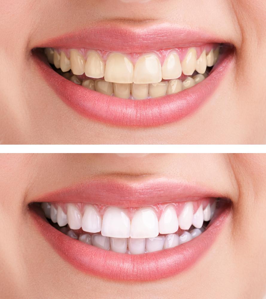 Японские отбеливающие полоски для зубов